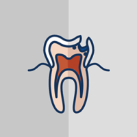 services-root-canal5