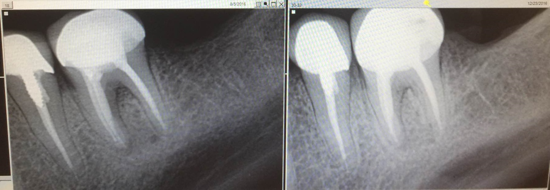 west covina root canal