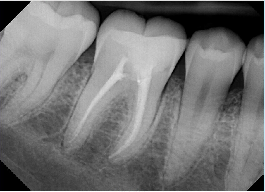 After-Root Canal