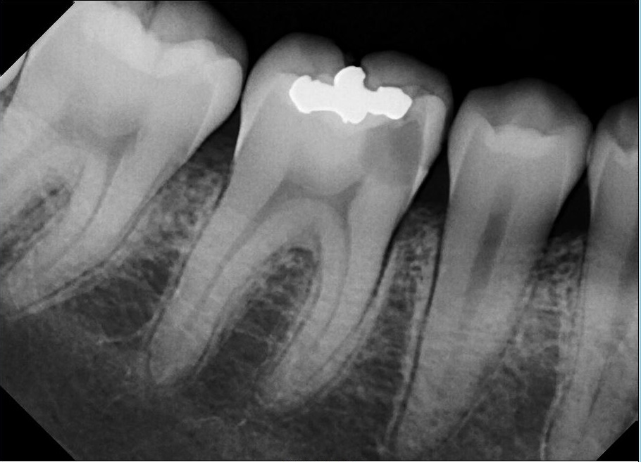 Before-Root Canal