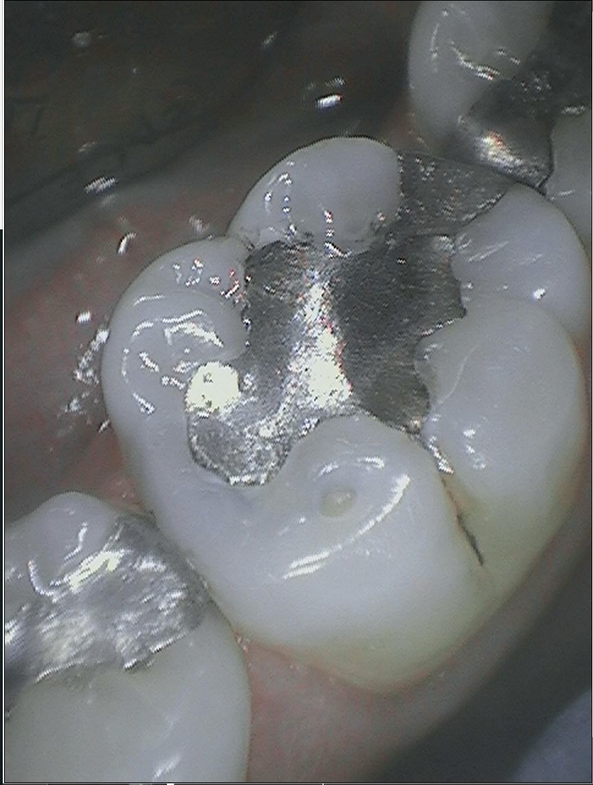 Before-Replacing Amalgam Fillings with Composite