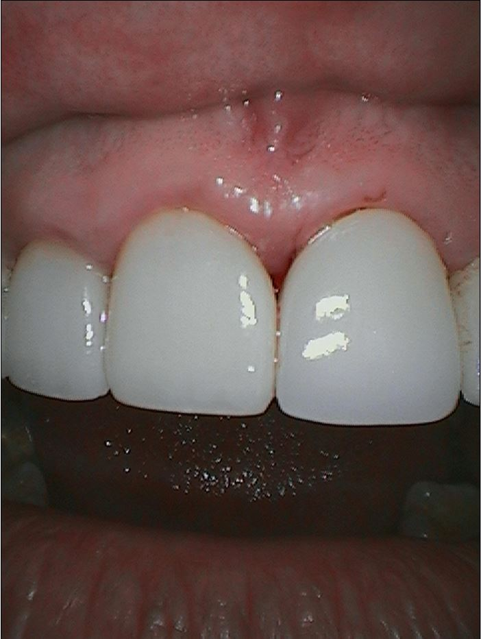 After-Crown for Front Teeth