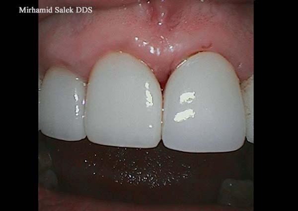 After-Dental Crown