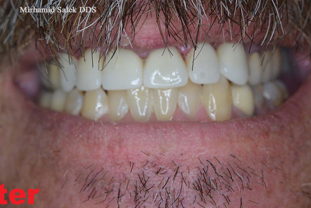 After-Multiple Front Crowns