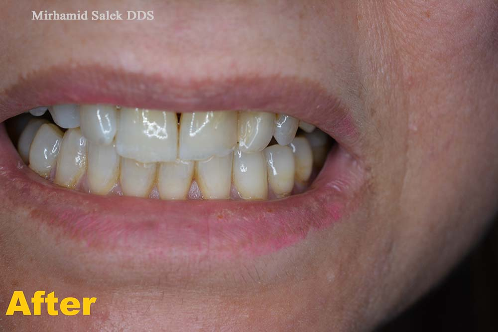 After-Front teeth Crown