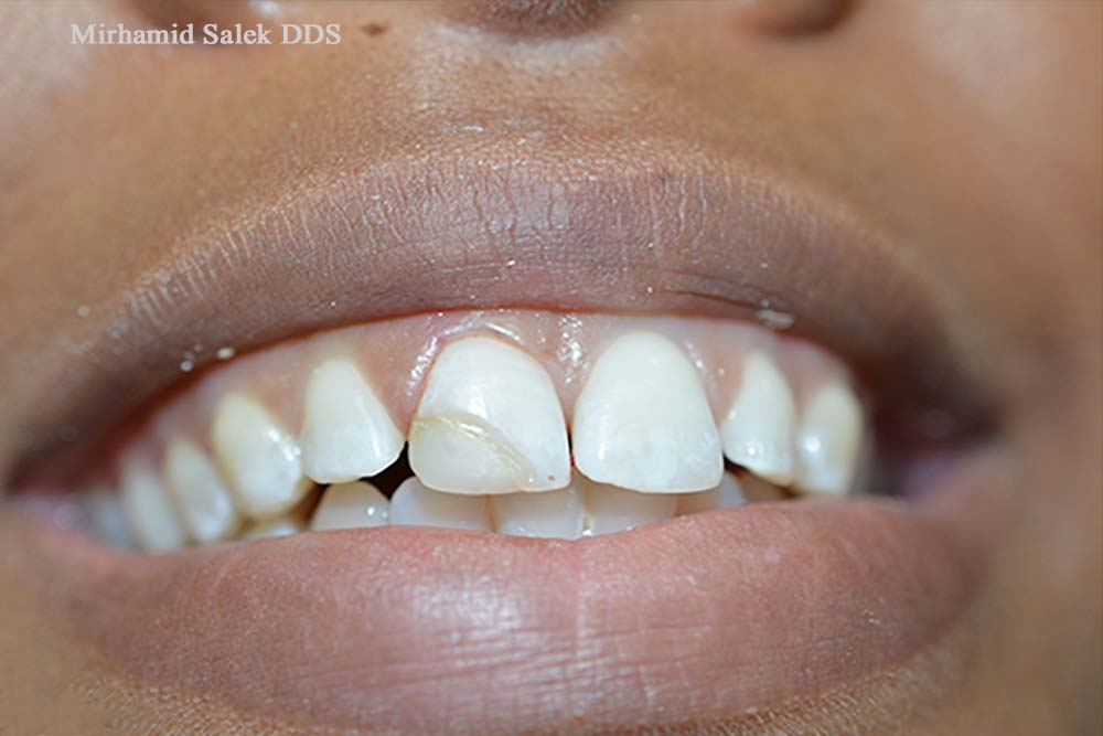 Before-Replacing Chipped Tooth