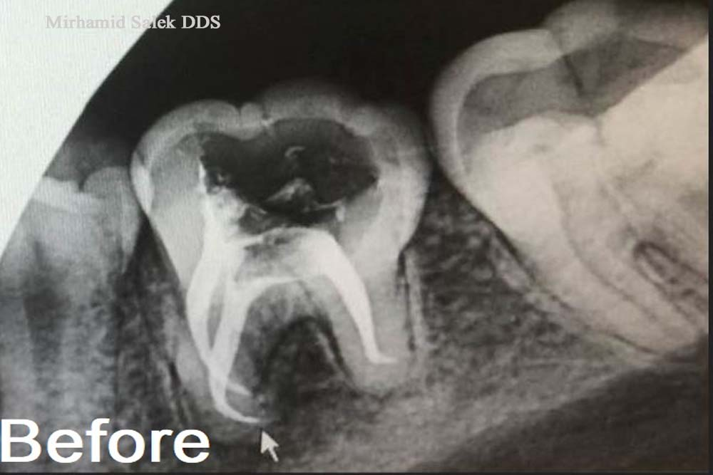 Before-Build up After a Root Canal